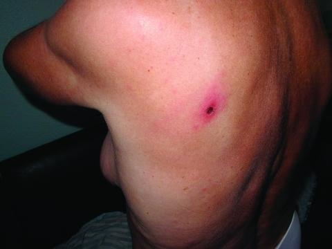 eschar and faint macular rash in patient 9. | open-i, Skeleton