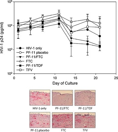 Effect of emtricitabine (FTC) and tenofovir disoproxil fumarate (TDF) incorporated into PF-11 matrix pellets on HIV infection in ectocervical explants. HIV-1 infection is monitored over 21 days by HIV-1 p24gag protein detected in the basolateral culture supernatant. Endpoint immunohistochemistry was performed to confirm infection. The presence of infected cells (red deposits) is indicative of p24-positive cells. The data presented are the median ±95% confidence interval of three independent tissues and representative immunohistochemistry figures.