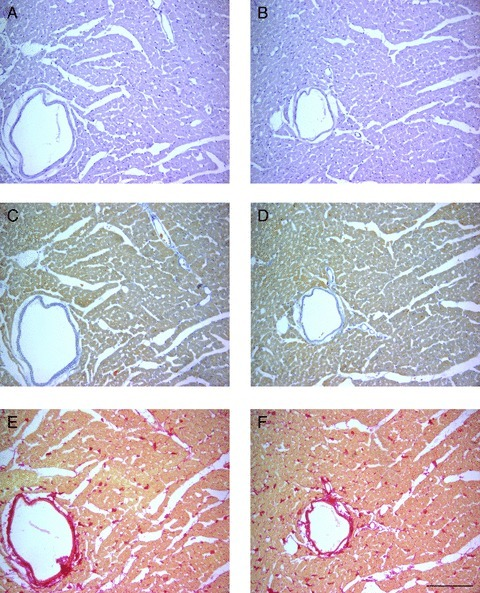 ECSW application does not induce structural damage to the heart. Histochemistry and immunohistochemistry methods were used to evaluate the morphology of cardiac tissue in control and treated animals at 3 months after ECSW application. Haematoxylin and eosin staining revealed no signs of inflammatory infiltration in control (A) or SW-treated hearts (B). Masson's trichrome (collagen in blue; C, D) and Picrosirius stainings (collagen in red; E, F) revealed no signs of fibrosis in control (C, E) or SW-treated hearts (D, F). Scale bar: 100 μm.