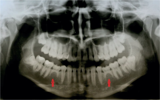 Hypodontia of both lower second premolars (persistent deciduous second molars).