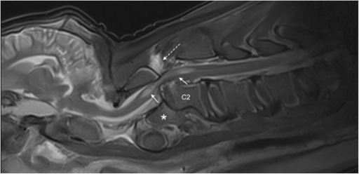 Post-mortem sagittal T2W-image of the cervical vertebral column. The MRI revealed similar findings as the radiographs but displayed pronounced spinal cord involvement. The images reflect displacement of the C2 vertebral body with step misalignment of the vertebral canal and severe spinal cord compression at this level. Next to the compression site, the spinal cord (continuous arrows) shows a T2-hyperintense intramedullary signal. The considered differentials were spinal cord oedema, haemorrhage or myelomalacia. The T2-hyperintense area within the paravertebral musculature located dorsal to the fracture site (broken arrow) is indicative of a traumatic dorsal event. Asterisk = odontoid process.