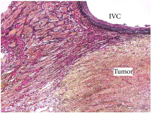 In the histopathologic diagnosis, Elastica van Gieson staining showed that the tumor arose from the vascular smooth muscle cells (white arrows).