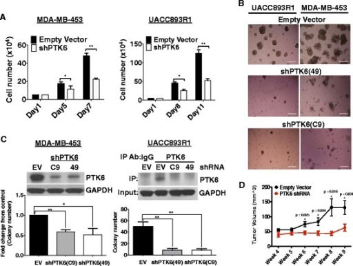 Protein tyrosine kinase 6 (PTK6) downregulation inhibits growth of Lapatinib-resistant human epidermal growth factor receptor 2 (Her2)+ breast cancer cells. a UACC893R1 or MDA-MB-453 cells grown in monolayer cultures expressing control or PTK6 shRNA (C9), were counted at the indicated number of days. b Cells expressing either control or two different PTK6 shRNAs (C9, 49) were grown in 3-D MatrigelTM cultures. Cells were re-fed with fresh media every 3–4 days. The figure represents day-16 cultures (UACC893R1) or day-23 cultures (MDA-MB-453). Scale bar 30 μm. c Cells expressing control or PTK6 shRNA (C9, 49) were cultured in soft agar assays for 30 days. Colonies greater than 50 square pixels were counted and plotted. Downregulation of PTK6 was confirmed by western analyses for MDA-MB-453 and UACC893R1 cells. d UACC893R1 cells expressing control or PTK6 shRNA (C9) were injected subcutaneously into flanks of 6-week-old female nude mice (n = 5/group). Tumor size was measured and recorded every 3–4 days. All figures are representative of three independent experiments except for the xenograft study, which was performed twice; *p <0.05; **p <0.005