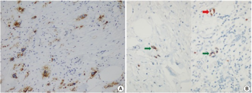 (A) Large cells are CD61-positive on immunohistochemical stain, indicating that they are megakaryocytes. (B) Glycophorin positivity in precursor cells (green arrows) belonging to the erythroid lineage and surrounding erythrocytes (red arrow).