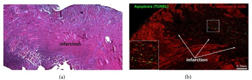 Infarct evaluation. Myocardial infarction 48 hours after coronary artery ligation. Hematoxylin and eosin staining with hypereosinophilic cardiomyocytes and early inflammatory infiltrates (upper panel). Confocal image of the infarcted heart (lower panel) showing apoptosis (TUNEL, green) and the disintegration of structural protein α-sarcomeric actin (red) in cardiomyocytes present in the infarcted area. The square represents a high magnification of the TUNEL positive profiles.