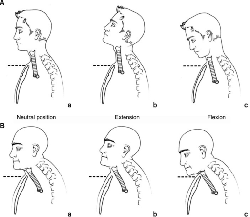 Mobility of the trachea with flexion and extension of t