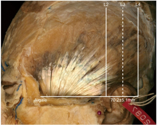 Type II, in which the posterior border of the temporalis tendon is located between L2 and L3 (85.7%, 18/21). The distance between the jugale and L3 was 70.2 ± 5.1 mm.