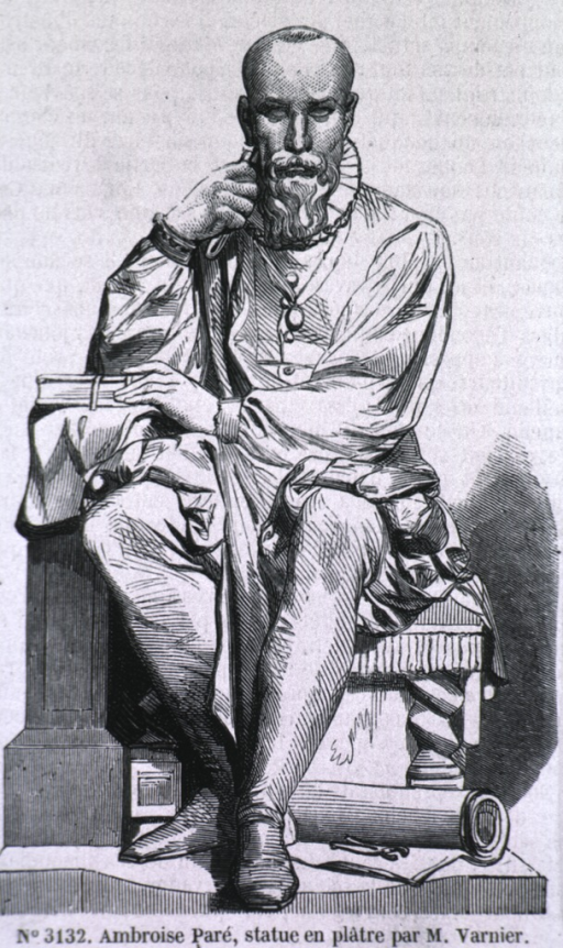<p>Seated, front pose.</p>