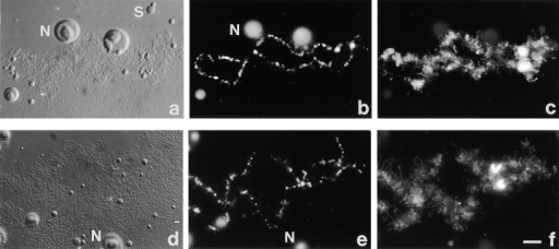 Splicing is not required for ADAR1 localization. (a and d) DIC images,  (b and e) DAPI staining, and  (c and f) ADAR1 localization detected by staining with  SAT4 antiserum in the fluorescein channel. (a–c) Staining of bivalent no. 3 from an  untreated oocyte shows localization of ADAR1 on the  RNP matrix of regular loops  and on the special loop. (d–f)  24 h after injection of the  U2b oligo transcription has  resumed giving rise to prominent loops (d). (f) Staining  with SAT4 antiserum shows  the presence of ADAR1 on  the loop matrix and on the  special loop on bivalent no. 3.  Bar, 10 μm.