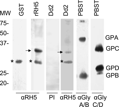 PfRH5 binds to a ∼32 kDa protein on human erythrocytes.Normal erythrocyte ghost cells were separated by SDS–PAGE, and the gel was blotted and incubated with GST (the fusion partner of rRH5) or rRH5 or native parasite culture supernatant. After extensive washing, bound protein was detected by rabbit anti-RH5-GST and blots were processed by enhanced chemiluminescence (ECL, Amersham Biosciences). A specific target protein of ∼32 kDA is seen in rRH5 lane (marked with arrow) and Dd2 lanes (marked with arrow). Asterisk denotes a non-specific protein band that appears in control GST and other lanes. Parallel blots were probed with anti-GPA/B or anti GPC/D antibodies to define positions of the glycophorins relative to the 32 kDA band. Pre-immune rabbit sera did not yield any reactivity (PI).
