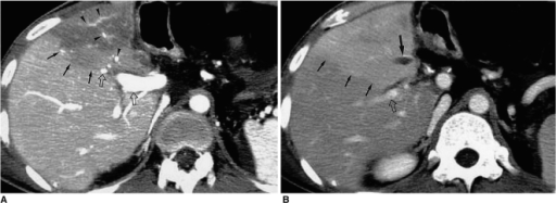 Attenuation differences secondary to hepatic vein obstruction in a transplanted liver.A. CT scan obtained during portal venous phase shows hypoattenuation of the anterior segment of the transplanted right lobe despite normal enhancement of the portal veins (arrowheads) inside the corresponding area.B. CT scan obtained during the equilibrium phase reveals thrombosed hepatic vein (arrow) which was ligated during surgery. The anterior segment of the transplanted right lobe appears hyperattenuated, producing a negative image of (A). Note that the straight border (small arrows in (A) and (B)) of transient hepatic attenuation difference intersects the portal veins (open arrows in (A) and (B)).
