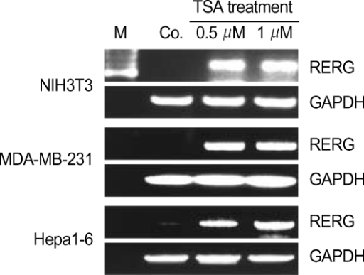 RERG expression in trichostatin A (TSA)-treated cells. Expression of the gene was analyzed by RT-PCR. NIH3T3, MDA-MD0-231, and Hepa1-6 cells were treated with 0.5 µM or 1 µm of the histone deacetyltransferases (HDAC) inhibitor TSA. GAPDH was used as a quantitative control. M, size marker.