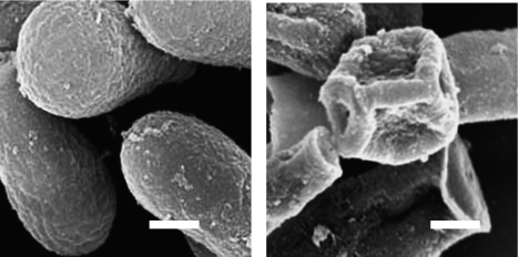 SEM images of T. mentagrophytes conidia after 5 min in 50°C water exposed (right) or not exposed (left) to ultrasound. Scale bar: 1 µm.