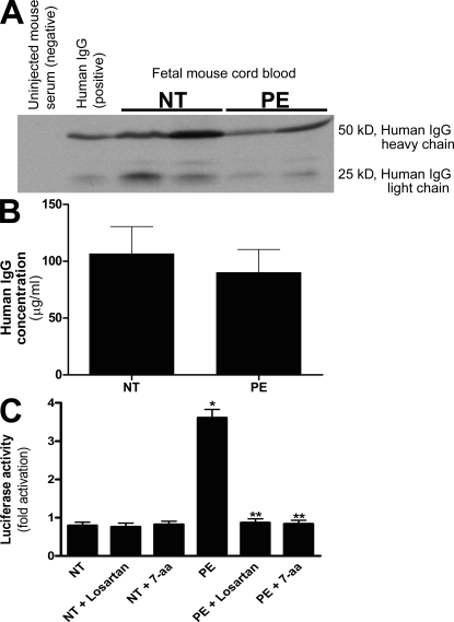 Human IgG crosses the mouse placenta and can be detected in fetal mouse sera where it retains biological activity. (A–C) Human IgG could be detected in fetal mouse circulation by Western blotting (A) and ELISA (B). IgGs from normotensive or preeclamptic pregnant women were injected into pregnant mice at E13 and E14. Fetal sera were collected upon sacrifice on E18. Human IgG was detected in fetal mouse circulation (born to dams injected with human IgG) by Western blotting (A) using an anti–human IgG antibody, but not in the circulation of mice born to dams without human IgG injection. The concentration of human IgG in fetal mouse circulation was detected by an ELISA specific for human IgG (B). IgGs from both normotensive and preeclamptic pregnancies were detectable in fetal mice circulation, and the level of IgGs in fetal circulation between the two injected groups (n = 7 for each group in three independent experiments) was not significantly different (P > 0.05). However, the only group whose serum harbored antibodies that recognized the AT1 receptor and maintained the biological activity was the fetuses of preeclamptic IgG-injected mice (C). This was assessed by using a bioassay wherein AT1 receptor activation induces luciferase activity in transfected CHO-NFAT cells (n = 5 for each variable in two independent experiments). Data are expressed as means ± SEM. *, P < 0.01 versus normotensive IgG treatment; **, P < 0.01 versus preeclamptic IgG treatment. NT, normotensive; PE, preeclampsia.