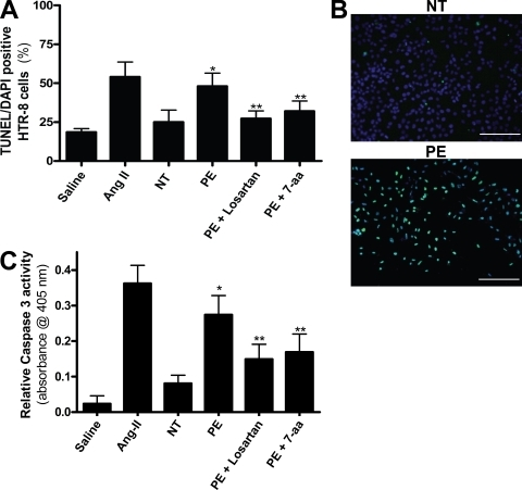 AT1 receptor activation increases trophoblast cell apoptosis. AT1 receptor activation induces apoptosis in HTR-8/SVneo cells, a human trophoblast cell line. (A–C) HTR-8/SVneo cells cultured with IgG derived from preeclamptic patients demonstrate increased apoptosis as compared with explants incubated with IgG derived from normotensive sera. A cell death index (A) based on TUNEL-stained HTR-8/SVneo cells (B) indicates that AT1 receptor activation increases apoptosis. Caspase 3 activity (C) is also increased in HTR-8/SVneo cells cultured with IgG from preeclamptic patients as compared with those cultured with IgG from normotensive patients. Coincubation of PE IgG with losartan or 7-aa epitope peptide reduces the amount of apoptosis as well as caspase 3 activity (green, TUNEL+; blue, DAPI nuclear stain; n = 12 for each variable in three independent experiments). Data are expressed as means ± SEM. *, P < 0.05 versus normotensive IgG treatment; **, P < 0.05 versus preeclamptic IgG treatment. NT, normotensive; PE, preeclampsia. Bars, 500 µm.