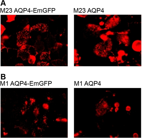 NMO-IgG staining patterns in AQP4-EmGFP versus AQP4 expressing cells.Fusion of EmGFP to AQP4 molecules has no effect on the formation of the different staining patterns of NMO-IgG in M-1 and M-23 AQP4 transfected cells. NMO-IgG has the same laminar staining pattern when binding M-23 AQP4 with and without EmGFP fusion (A). In contrast, cells transfected with M-1 AQP4-EmGFP and M-1 AQP4 have a more point shaped staining pattern (B).