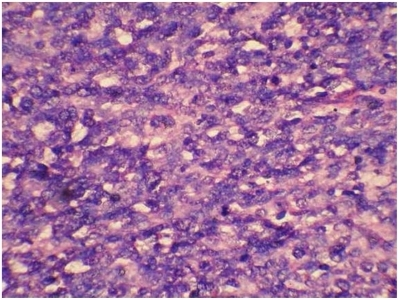 Haematoxylin and eosin staining (X 400) showing sarcomatous component.