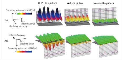 Color 3D imaging patterns of respiratory impedance in patients with asthma. Color 3D images were classified visually into COPD-like, asthma, and normal-like patterns by three researchers who were unaware of the clinical information and classified images by a majority decision when necessary. The COPD-like pattern corresponded to the pattern usually found in patients with COPD, while the normal-like pattern corresponded to the pattern usually found in normal controls.