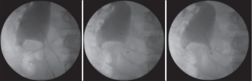 Utilisation of accusize endopyelotomy in the treatment of secondary pelviureteric junction obstruction. The patient had an open pyeloplasty 10 years previously. The markers signifying the proximal and distal extent of the cutting balloon can be clearly seen