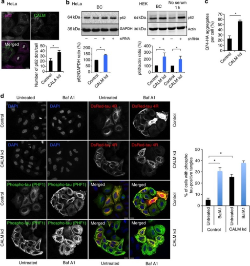 CALM modulates autophagysubstrate clearance in vitro.(a) p62 vesicleformation in CALMknockdown HeLa cells. Confocal pictures are shown. #CALM-downregulated cells wherep62 vesiclesaccumulate. Data are representative of three independent experiments andshown as mean ±s.e.m. (n≥500 cells;*P<0.01; two-tailed t-test). Scale bars,5 μm. (b) Western blot analysis of p62, actin and GAPDH in HeLa cellsand HEK cells (basal conditions, BC, or without serum for 1 h)where CALM was knockeddown using shRNA or siRNA, as indicated. Data are mean ±s.d(n=3 experiments for HeLa cells and HEK cells;*P<0.05; two-tailed t-test). (c) Percentage ofQ74-expressing cells with aggregates in CALM knockdown HeLa cells. Data depict onerepresentative experiments performed in triplicate, out of three independentexperiments and shown as mean ±s.d. (*P<0.05;two-tailed t-test). (d) Tau-positive tangle formation in CALM knockdown cells. HeLa cellstransiently expressing DsRed-tau 4R were treated with Baf A1 for 4 h asindicated. Cells were fixed and analysed by confocal microscopy afterimmnunostaining for phosphorylated tau using PHF1 antibody (green). Data represent thenumber of cells with phosphorylated tau-positive tangles as mean ±s.e.m.(n=3 experiments; *P<0.01; two-tailed t-test).Scale bars, 5 μm.