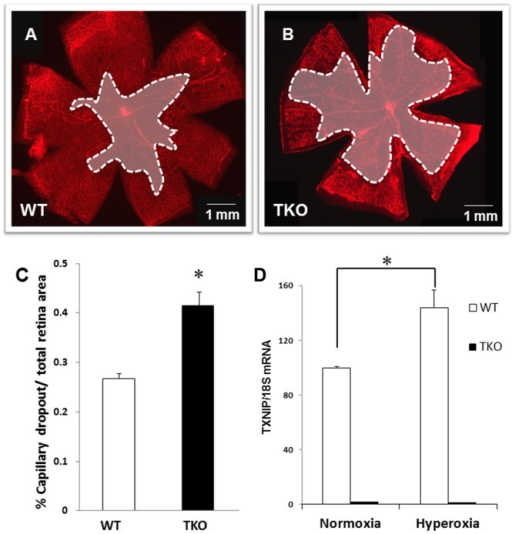 Deletion of TXNIP augments hyperoxia-induced vaso-obliteration compared to WT.Wild type (WT) and TXNIP knockout (TKO) mice were subjected to hyperoxia (75% O2, p7–p12). Retinas were fixed and stained with iso-lectin B4 to quantify oxygen induced vaso-obliteration. A–C) Retinas from TKO mice exposed to hyperoxia showed significant increases in vaso-obliteration compared to WT. (*P<0.05 vs WT, n = 12). D) Hyperoxia stimulates TXNIP expression mRNA in WT but not in TKO mice. (*P<0.05 vs WT normoxia, n = 4)