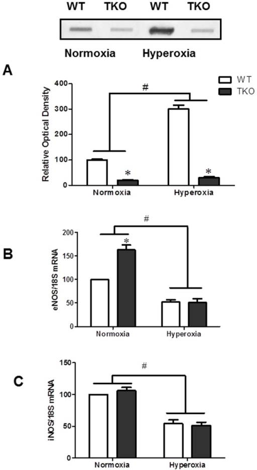 Deletion of TXNIP decreases nitrative stress under normoxia and hyperoxia.A) Retinas of TKO showed significantly less nitrotyrosine levels at normoxia or hyperoxia compared to WT. B) TKO showed higher eNOS mRNA level in normoxia. Hyperoxia significantly reduced eNOS mRNA levels. A 2×2 analysis showed a significant interaction between the gene (TKO) and the oxygen level (hyperoxia) in both nitrotyrosine and eNOS levels. C) We did not detect difference between TKO and WT in the expression of iNOS. Hyperoxia caused significant reduction of iNOS compared to normoxia. (#P<0.05 Hyperoxia vs Normoxia, *P<0.05, TKO vs WT, n = 4–6).