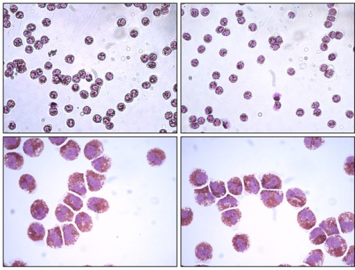 Representative cytocentrifuge smears of two high purity eosinophil preparations obtained from peripheral blood samples.May-Grünwald-Giemsa staining, original magnification: X 400 in the upper panels and X 1000 (immersion) in the lower panels.