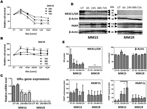 Dexamethasone decreases cell viability in a dose and time dependent manner in GC sensitive MM1S but not GC resistant MM1R cells.(A–B) dose response curves of MM1S and MM1R cells treated with dexamethasone at different concentrations for 24, 48 and 72 h as determined by MTT colorimetric assay. Data represent (mean ± SEM) values of three independent experiments. (C) time dependent changes in GRα mRNA levels upon 1 µM dexamethasone treatment. Data represent (mean ± SEM) values of three independent experiments normalized to 28sRNA housekeeping gene and relative to MM1S untreated condition (S UT). Means with ***, **, * are significantly different (p<0.001, <0.01 or <0.05 and ns are not significantly different as determined by one-way ANOVA (Dunnett's Post-test) (D) Time dependent changes in GRα protein levels and PARP cleavage in MM1S and MM1R cells following treatment of 1 µM Dex. (E) Densitometric analysis of western blot signals (n = 2) of protein levels of GR (92 kDa), β-Actin (40 kDa), full length PARP (116 kDa) and cleaved PARP (89 kDa) in MM1S and MM1R, following treatment of 1 µM Dex. Significant differences between western signals in MM1R and MM1S are indicated.