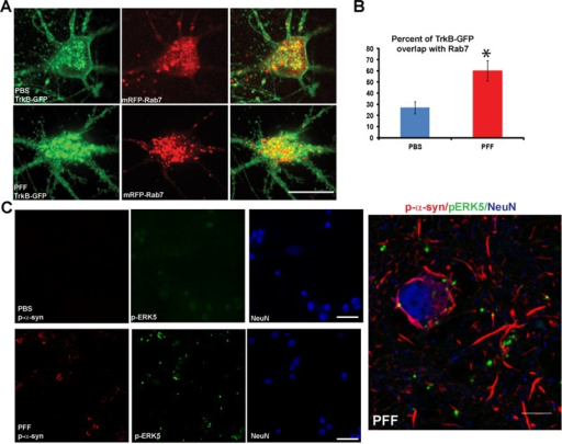 Accumulation of endosomes and endosomal-associated signaling molecules in neurons with α-syn aggregates. (A) Neurons were cotransfected with TrkB-GFP and mRFP-Rab7 and imaged by confocal microscopy. Neurons were treated with BDNF for 30 min before imaging. TrkB-GFP appeared to localize at or near plasma membrane and intracellular puncta in neuronal soma of control neurons. In α-syn aggregate–bearing neurons, TrkB-GFP did not appear to localize to the plasma membrane but showed enlarged intracellular accumulations. Scale bar, 10 μm. (B) The percentage of colocalization of TrkB-GFP with mRFP-Rab7 late endosomes was significantly increased in PFF-treated neurons (t = 3.3, p = 0.004). Scale bar, 10 μm. (C) Neurons (in this case, not transfected with TrkB-GFP or other plasmid) were treated with PBS or PFFs and fixed 7 d later. Immunostaining was performed with antibodies to p-ERK5, p-α-syn, and NeuN as a marker for neuronal soma. Neurons were imaged by confocal microscopy. In control neurons, p-ERK5 showed minimal immunofluorescence. In α-syn aggregate–bearing neurons, p-ERK5 showed increased immunofluorescence and localized to perinuclear puncta juxtaposed to p-α-syn aggregates. Right, higher-magnification image shows that pERK5 puncta can be found juxtaposed to the α-syn aggregates. Scale bar, 10 μm.