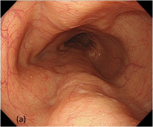 Comparison between achalasia (left) and non-achalasia (right) patients using indigocarmine and NBI.