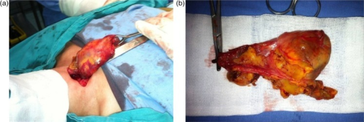 (a) Tumor removal through the cervical approach. (b) Tumor's aspect after a complete monoblock extirpation.