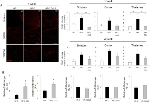 CCL2 ameliorates neuroinflammation in NP-C mice. (A) Representative images andquantification of GFAP on days 7 and 28 after CCL2 treatment (scale bar, 100µm, n=3 per group). Quantification of GFAP immunostaining foractivated astrocyte cells was performed in the striatum, cortex and thalamus. (B)Expression of anti-inflammatory cytokines (IL-10 and IL-4) and pro-inflammatorycytokines (IL-1β, IL-6 and TNF-α) was measured by quantitative real time PCR in thebrain region of CCL2 injection (striatum close to the SVZ). The expression of thedifferent genes was normalized by GAPDH (n=4 per group). All data are given as mean ±SEM. *P<0.05, **P<0.01***P<0.005.