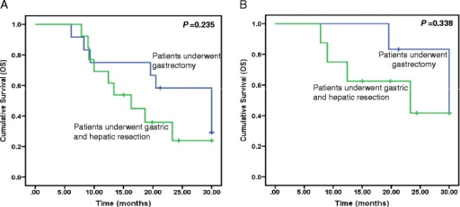 Kaplan-Meier curves for survival in patients who underwent adjuvant surgery. a Comparison of OS between patients who underwent gastrectomy and patients treated with combined gastric and hepatic resection. b Comparison of OS between patients who initially achieved PR after chemotherapy then underwent gastrectomy and patients who initially achieved PR after chemotherapy then treated with combined gastric and hepatic resection