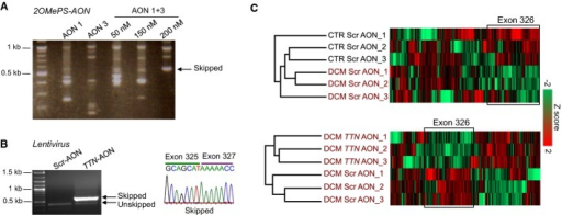 AON-mediated skipping of exon 326 in TTN Ser14450fsX4 induced pluripotent stem cell (iPSC)-derived cardiomyocytesRT–PCR analysis of TTN exon 326 transcripts from DCM cardiomyocytes transiently transfected with 2OMePS-AON1, 2OMePS-AON3, and 2OMePS-AON1 + 3.RT–PCR analysis (left) and representative direct sequencing (right) of TTN exon 326 transcripts from DCM cardiomyocytes infected with the U7snRNA-TTNAONs-IRES-GFP lentiviral vector carrying the AON1 and 3 sequences (TTN-AON) or with a control vector (U7snRNA-ScrAONs-IRES-GFP).Mass spectrometry-based analysis of titin peptides in cells infected with the U7snRNA-ScrAONs-IRES-GFP (Scr-AON) and U7snRNA-TTNAONs-IRES-GFP (TTN-AON) vectors. Unsupervised hierarchical clustering identified a cluster significantly enriched in peptides mapping to exon 326 that was down-regulated in DCM Scr-AON cardiomyocytes compared to CTR Scr-AON cardiomyocytes (n = 3, P = 9.03E−8, Fisher's exact test, FDR = 0.04, top). Down-regulation of exon 326 was also detected in DCM TTN-AON cells when compared to DCM Scr-AON cells (n = 3, P = 0.02, Fisher's exact test, bottom).
