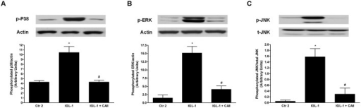 "MAPK activation changes after enrichment of IGL-1 solution with CA II.Western blotting and densitometric analysis of p-38 (A); p-ERK (B) and p-JNK (C) in steatotic liver after 120 min of normothermic ""ex vivo"" perfusion. CA II addition to IGL-1 solution prevented MAPK activation. Ctr 2: Liver flushed and perfused ""ex-vivo"" without cold preservation; IGL-1: liver preserved in IGL-1 solution (4°C, 24 h) and subjected to 2h-normothermic ""ex vivo"" perfusion. IGL-1+CAII: liver preserved in IGL-1 solution (4°C, 24 h) enriched with CA II and subjected to 2h- normothermic ""ex vivo"" perfusion. * p < 0.05 vs Ctr 2; # p < 0.05 vs IGL-1."
