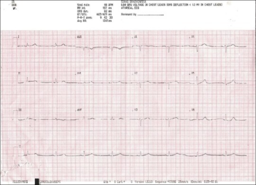 ECG on day of admission showing sinus bradycardia with a PR interval of 160 msec and corrected QTc of 430 msec