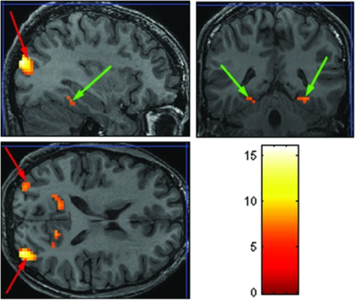 Extracted ROIs based on the Face-Scene-Object functional localizer scans, as seen in one of the subjects. Green arrows pointing on the parahippocampal place area (PPA); red arrows pointing on the transverse occipital sulcus (TOS).