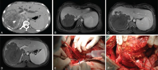 A: An enhanced CT indicated a large lesion in the right lobe that invaded the left bile duct, and the left biliary ducts were dilated due to the obstruction; B and C: a preoperative MRI scan indicated an invasion of the right and middle hepatic vein and the retrohepatic segment of the IVC; D: a preoperative MRI scan indicated an invading left intrahepatic vascular tree and bile duct in the first porta hepatis; E: a large alveolar echinococcosis target in the right lobe and strong widespread adhesions with surrounding tissues made the recipient hepatectomy more difficult than in patients with other liver diseases; F: the intraoperative findings confirmed the invasion and circumvolution of the retrohepatic segment of the inferior vena cava. CT = computerized tomography, IVC = inferior vena cava.