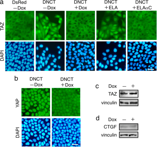 DNCT expression induces the nuclear localization of TAZ.(a) Immunofluorescence staining of T23 MDCK cells expressing DsRed, DNCT, or DNCT and ELA (DNCT+ELA), or DNCT and ELAαC (DNCT+ELAαC). Cells were stained with anti-TAZ antibodies and DAPI. Although TAZ is excluded from the nucleus and is predominantly localized in the cytoplasm of DsRed+ cells, TAZ is distributed throughout DNCT+ cells, including a significant portion in the nucleus. Dox-induced reduction in DNCT expression caused the redistribution of TAZ from the nucleus to the cytoplasm. Expression of ELAαC in DNCT+ cells prevents nuclear localization of TAZ induced by DNCT. (b) Staining of DNCT+ cells with anti-YAP antibodies and DAPI. Cells were cultured for 2 d in the presence (+) or absence (−) of Dox. Bars, 25 μm. (c,d) Immunoblot detection of TAZ (c) and CTGF (d) revealed that the expression of DNCT does not change the amounts of these proteins. Vinculin was used as a loading control.
