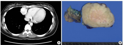 Radiologic and macroscopic findings. (A) Chest computed tomography reveals a well-demarcated enhanced mass in the anterior inferior mediastinum. (B) Mediastinal mass shows a gray-white homogeneous cut surface with no necrotic or hemorrhagic focus.