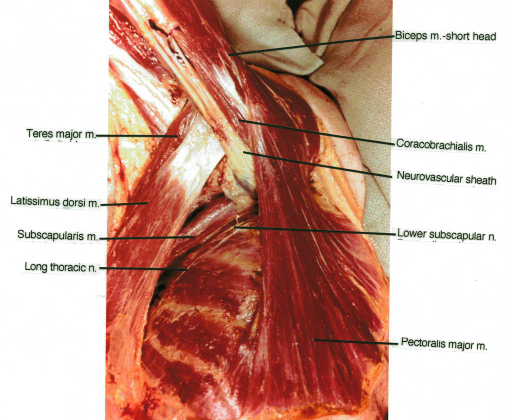 biceps muscle; teres major muscle; latissimus dorsi muscle; subscapularis muscle; long thoracic nerve; coracobrachialis muscle; neurovascular sheath; lower subscapular nerve; pectoralis major muscle