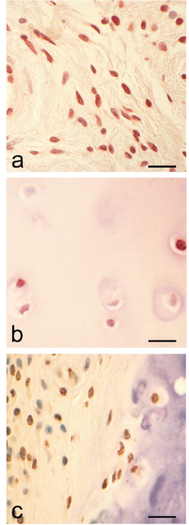 Immunolocalization of the vitamin D receptor (VDR) in rheumatoid tissues. (a) Immunolocalization of VDR in rheumatoid synovium. Note positive red immunostaining of fibroblastic cells. (Counterstain Harris's haematoxylin; bar = 25 μm.) (b) Demonstration of VDR in cartilage from a rheumatoid joint. Note both positive and negative chondrocytes. (Counterstain Harris's haematoxylin; bar = 20 μm.) (c) VDR immunolocalization at the cartilage-pannus junction; cells within both pannus tissue and cartilage can be seen to be expressing the receptor. (Counterstain toluidine blue; bar = 25 μm.)