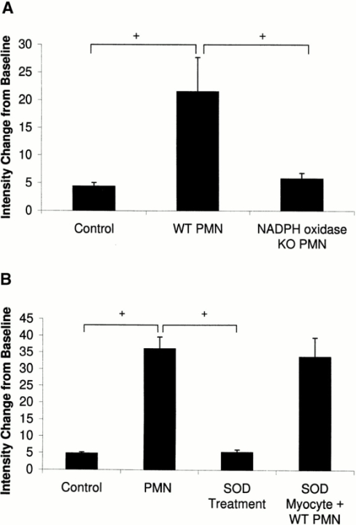 (A) Change in fluorescence intensity from baseline for control (no PMNs, n = 5), WT PMNs (n = 4), and NADPH oxidase KO PMNs (n = 5) at 5 min. +, P < 0.05 between indicated groups. (B) Change in fluorescence intensity from baseline for control (no PMNs, n = 4), PMNs (PMN only, n = 4), SOD treatment (PMN + SOD 300 U/ml; n = 4), and SOD Myocyte + WT PMNs (n = 4) at 5 min. +, P < 0.05 between indicated groups.