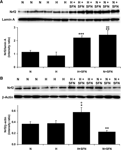 Nuclear translocation of nrf2 in human HMEC-1 endothelial cells in vitro activated by sulforaphane. Nuclear fraction (A) and cytosolic fraction (B) immunoblotting for nrf2 (98-kDa band). Densitometric intensity ratios are means ± SD (n = 3). N, 5 mmol/l glucose; H, 30 mmol/l glucose; N+SFN, 5 mmol/l glucose + 4 μmol/l sulforaphane; and H+SFN, 30 mmol/l glucose + 4 μmol/l sulforaphane. *P < 0.05, **P < 0.01, and ***P < 0.001 with respect to N; ○P < 0.05 and ○○P < 0.01 with respect to H.