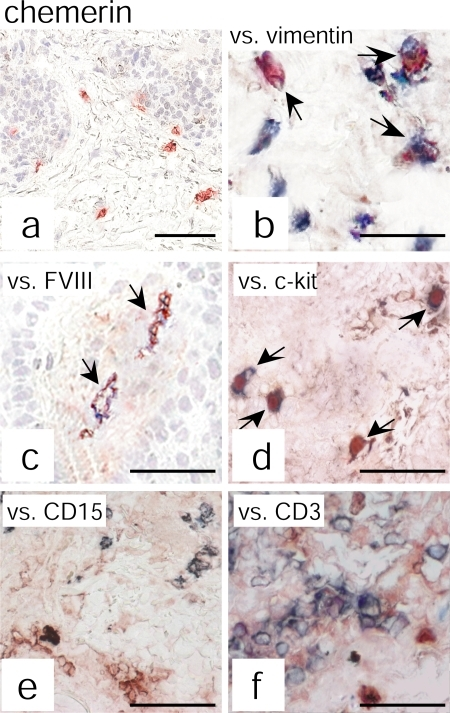 Chemerin expression colocalizes with vimentin+, FVIII+, and c-kit+ cells. Chemerin expression was evaluated by double immunohistochemistry in psoriatic plaque lesions. Anti-chemerin mAb (red) immunoreactivity was detected in dermal cells having fibroblast-like morphology (a). Double-staining analysis revealed that chemerin colocalizes with vimentin (b), FVIII (c), and c-kit (d) but not with CD15 (e) or CD3 (f) staining (all blue). The figure shows the staining of one biopsy that is representative of eight different patients evaluated. Arrows indicate cells that are double positive for chemerin and for vimentin (b), FVIII (c), or c-kit (d). Bars, 20 μm.