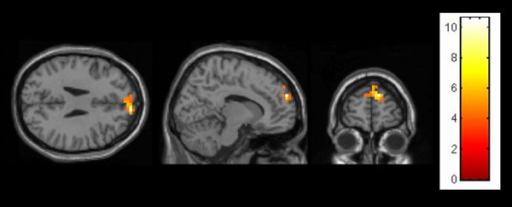 Male (human partner > computer partner) showing a peak activation in the medial prefrontal gyrus (FWE p < .05, Monte Carlo corrected).
