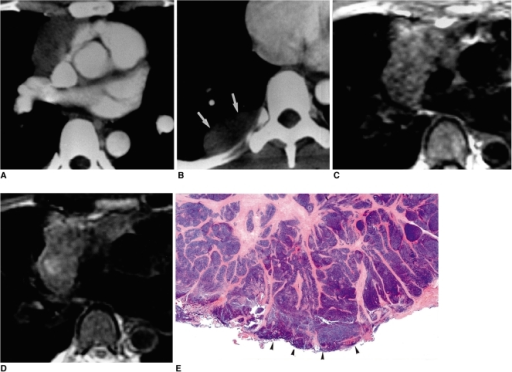 Type-B2 thymoma in a 35-year-old woman.A. Enhanced 10-mm-collimation CT scan obtained at the level of the right interlobar pulmonary artery shows that in the anterior mediastinum, a slightly attenuated heterogeneous mass is present.B. CT scan (10-mm collimation) obtained at the level of the suprahepatic inferior vena cava depicts a pleural mass lesion (arrows) with low attenuation.C. T1-weighted MR image obtained at a similar level to A shows a mass lesion with high-signal intensity.D. T2-weighted image depicts a slightly heterogeneous high-signal lesion.E. Photomicrograph (original magnification, × 1; hematoxylin-eosin staining) shows an invasive tumor bud (arrowheads) penetrating the capsule where there is no fibrous sleeve.