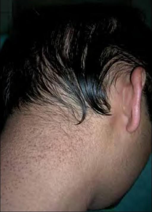 multiple follicular keratotic papules over the nape of | open-i, Cephalic Vein