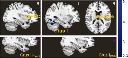 Significantly reduced functional connectivity in depressed patients between cerebellar executive and default-mode seed regions (shown in the lower row) with cerebral areas.
