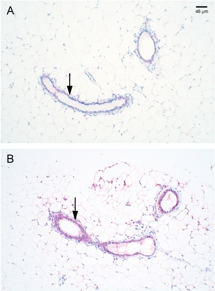Immunostaining of SDC-1 in mammary glands of Fat-1 and wild type mice.Mammary glands from wt (A) and Fat-1 (B) mice were fixed, sectioned and immunostained with antibody H-174 raised against a recombinant protein corresponding to amino acids 82-256 of the human SDC-1 core protein. Arrows point to SDC-1 immunoreactive product localized in ductal epithelial cells.